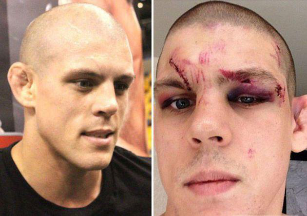 ufc-avant-apres-joe-lauzon