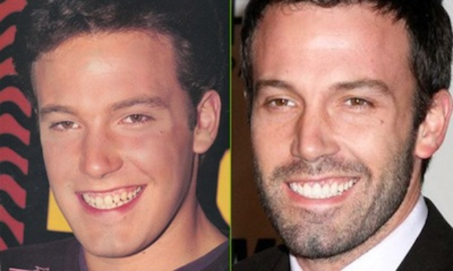 Ben-Affleck-teeth-before-after-cosmetic-dentistry-copie-L