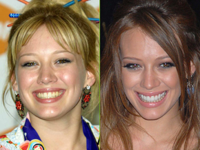 Hilary-Duff-teeth-before-after-cosmetic-dentistry-copie-L
