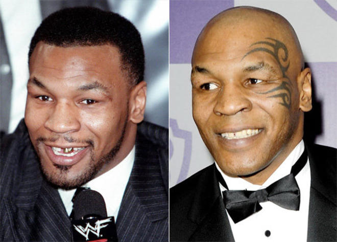 best-teeth-makeovers-mike-tyson-L