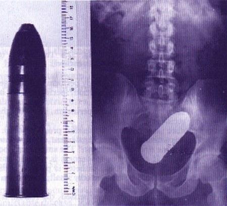 objet-rectum-balle