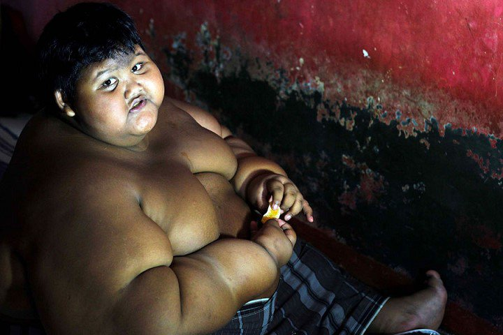 Arya-Permana-enfant-192-kilos-10-ans-indonesie-4